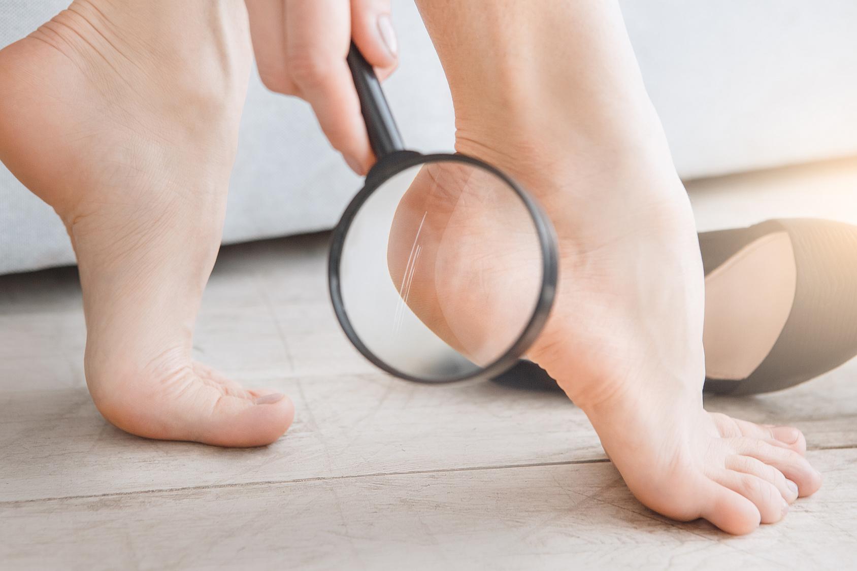 気になる足のニオイ対策には足の角質ケアが効果的!